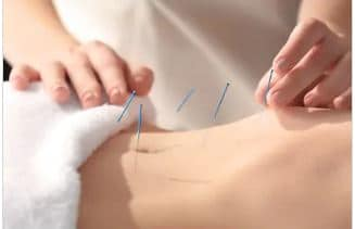 l'acupuncture pour soigner le syndrome de l'intestin irritable