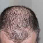 Perte de cheveux que faire ?
